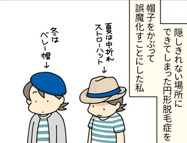 帽子をかぶった円形脱毛症の女性